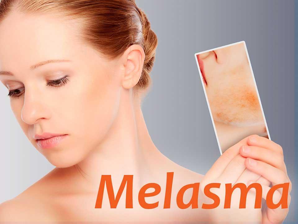 Tratamento para Melasma