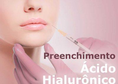 Preenchimento – Ácido Hialurônico