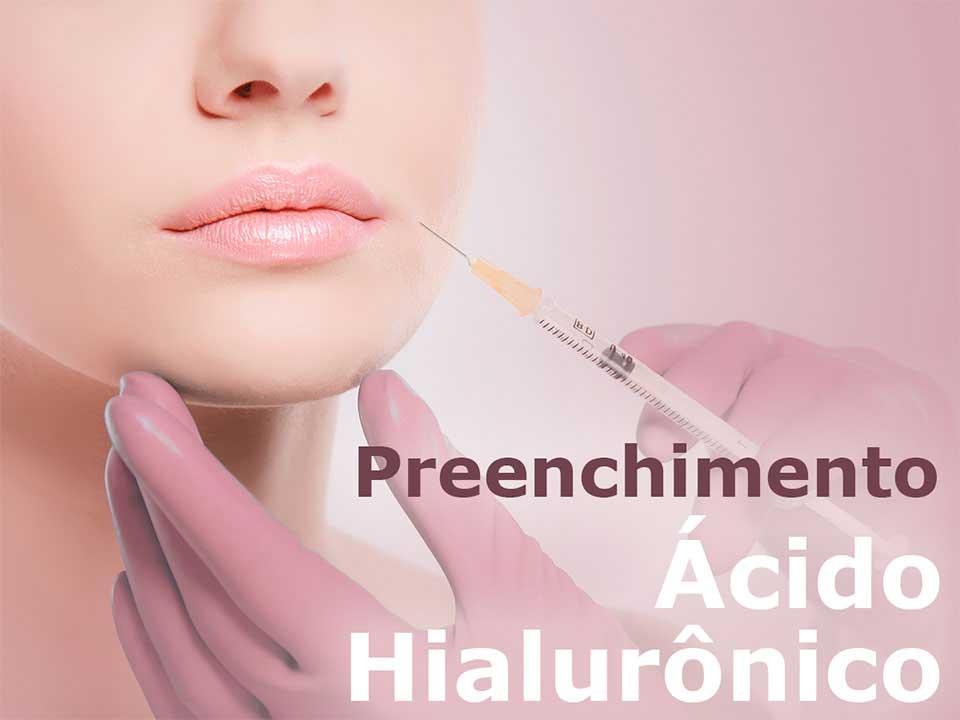 Preenchimento Ácido Hialurônico