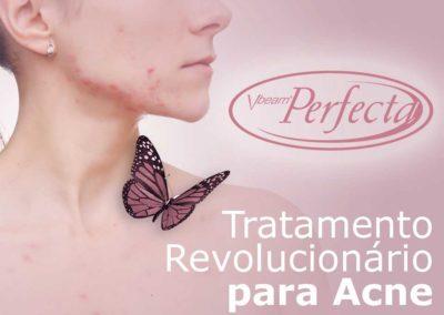 Vbeam Perfecta – Tratamento para Acne
