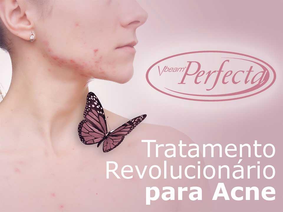 vbeam Perfecta - Tratamento para Acne